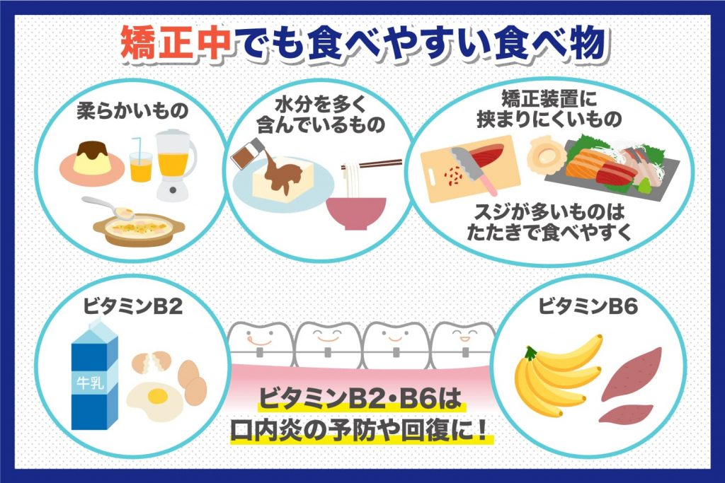 矯正中でも食べやすい食べ物5つ