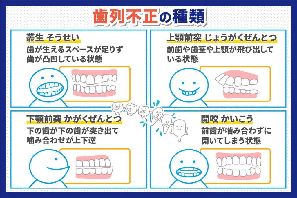 歯列不正の種類