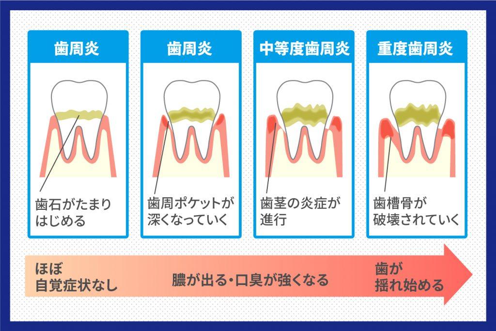 歯周炎の進行状況